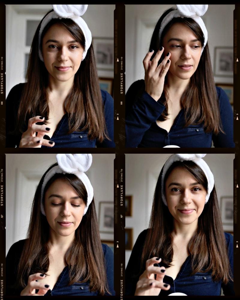 Rozacea i njeni imitatori + sličnosti i razlike rozacee, perioralnog, seboreičnog dermatitisa